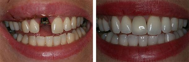 зубы керамика винир